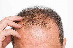 hair-loss-img