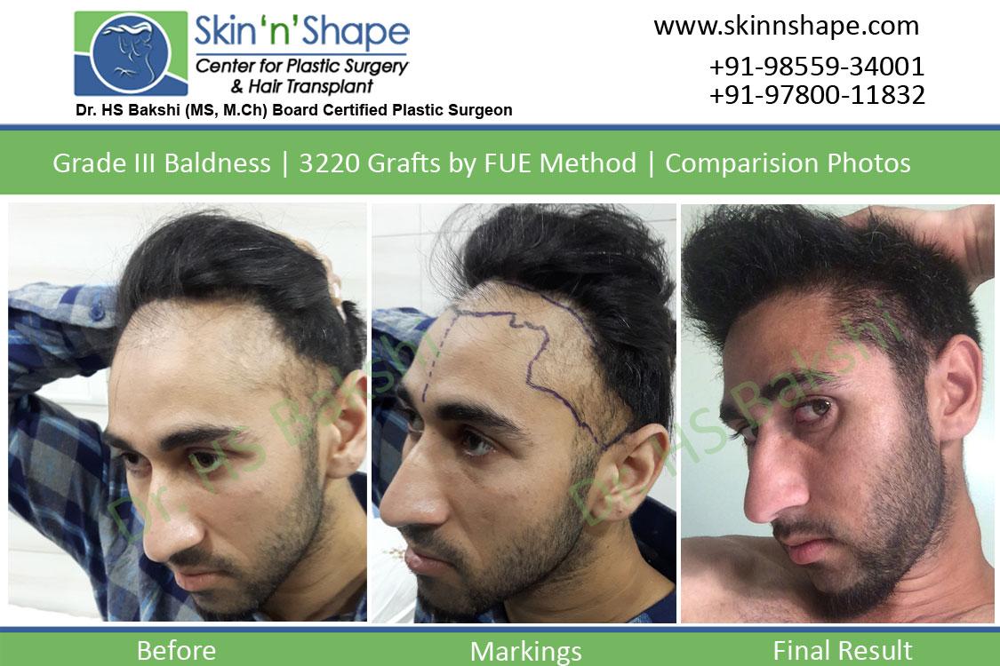 Hair transplant in Chandigarh, Punjab, Patiala, Amritsar, Jalandhar
