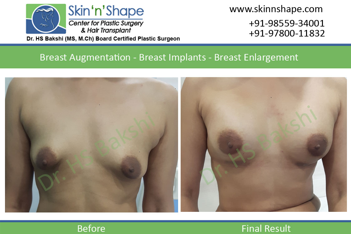 Breast Augmentation in Chandigarh, Punjab
