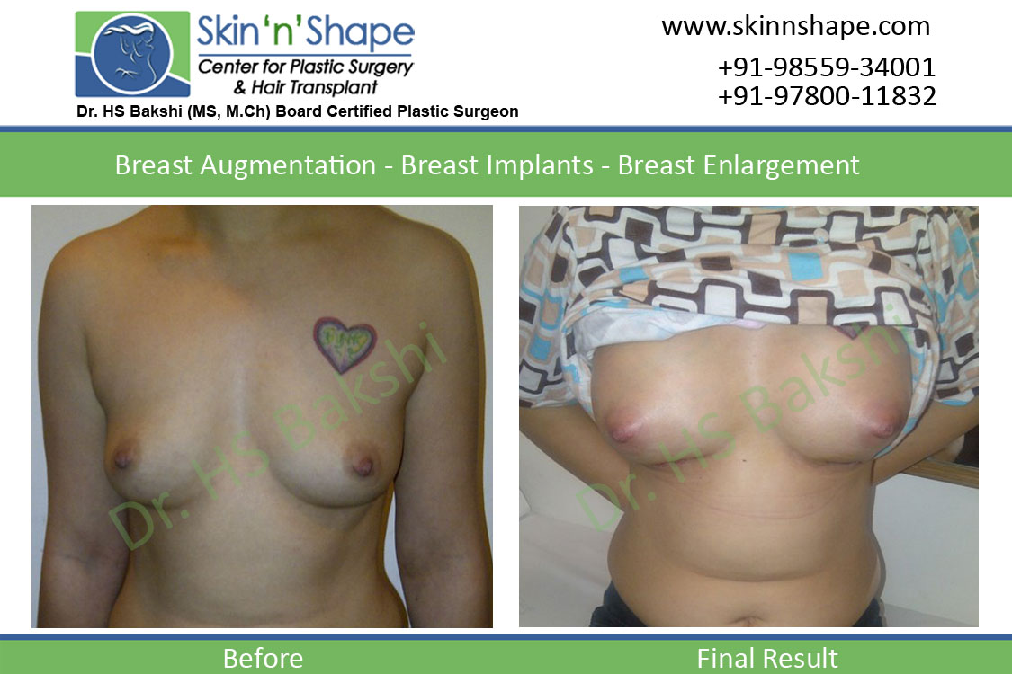 Breast Augmentation in Punjab, Chandigarh