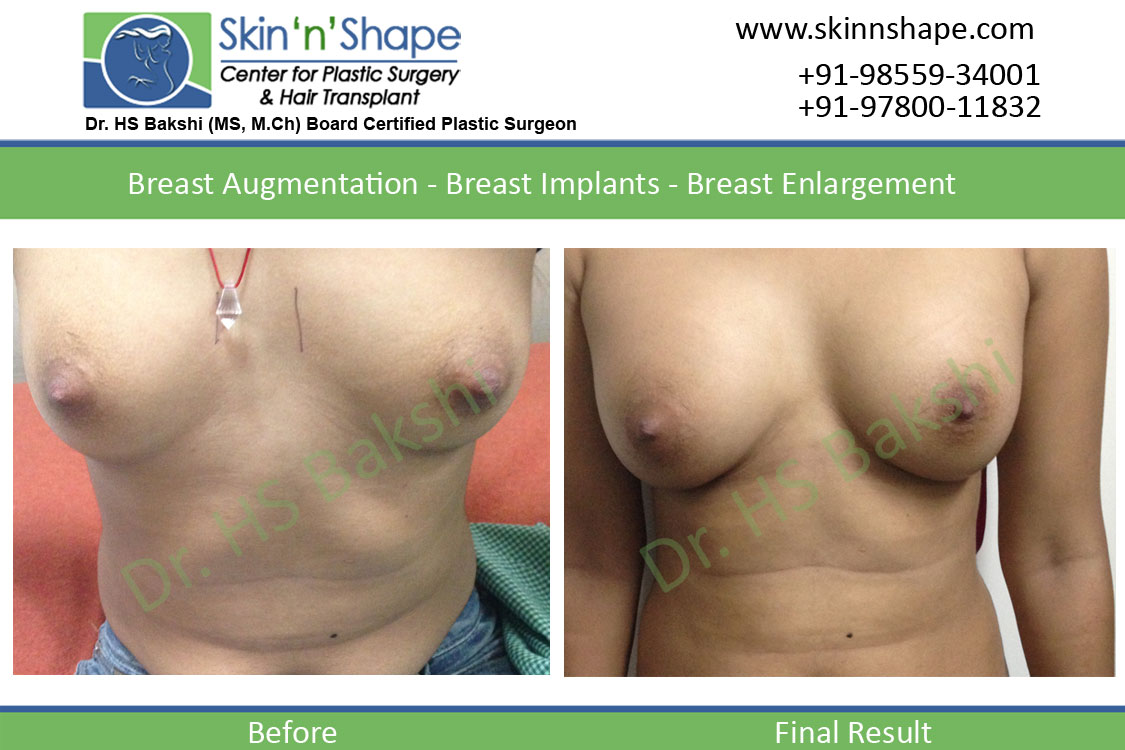 Breast Augmentation in Chandigarh, Himachal
