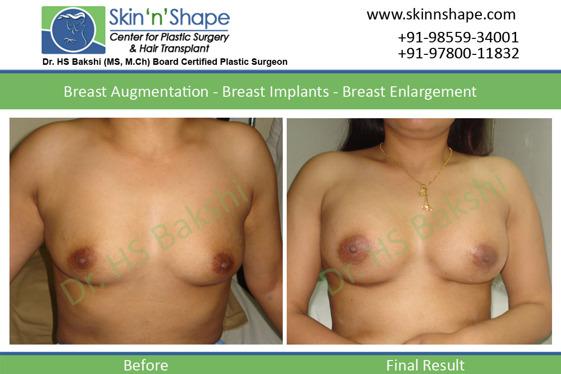 Breast Enlargement in Punjab, Chandigarh