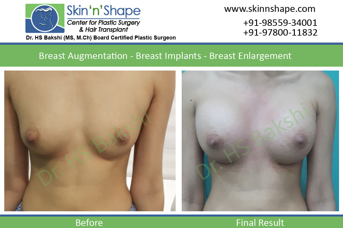 Breast Enlargement in Chandigarh